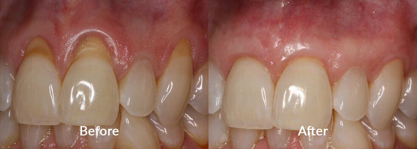 Close-up of teeth before our services and after - Alloderm graft