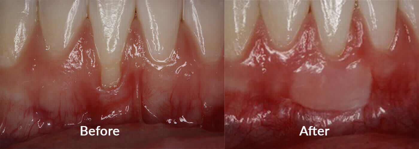 Close-up of teeth before our services and after - Connective Tissue Grafts