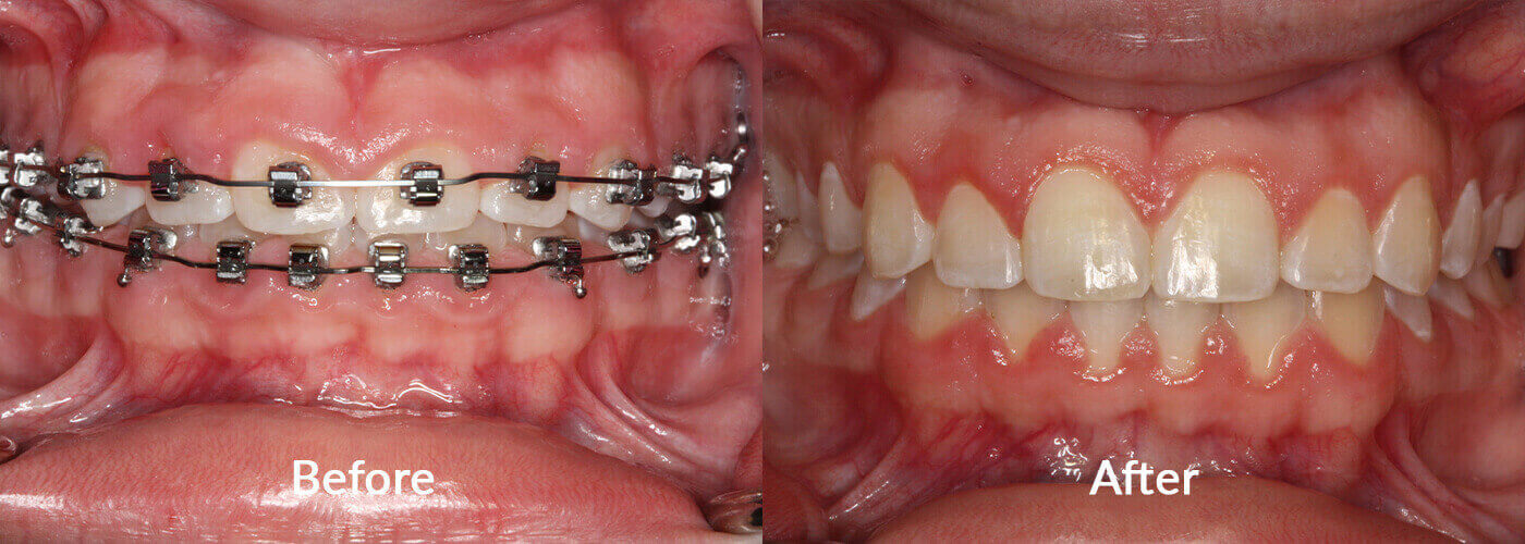 Close-up of teeth before our services and after - Esthetic Crown Lengthening